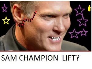 sam champion