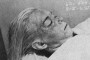 Marilyn Monroe Autopsy -- how does she look now?